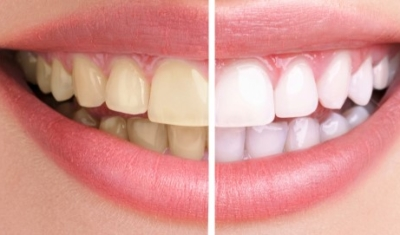Results you can achieve with professional whitening in Burien Family Dental Care