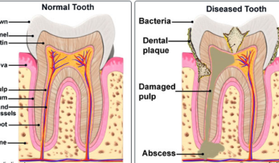 Healthy tooth vs. Infected tooth that needs root canal treatment