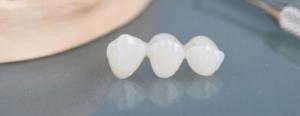 Burien Dental 2