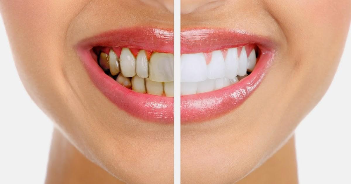 burien Dental 1