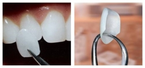 burien dental 3