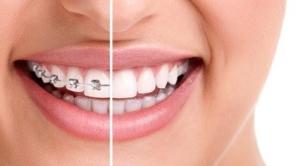 burien dental 4