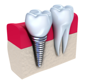 burien Dental 1.jpg